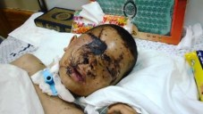 9-year-old-palestinian-badly-injured-2014
