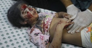 gaza-child-injured-20140723